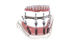 Prostho rs_rsx65